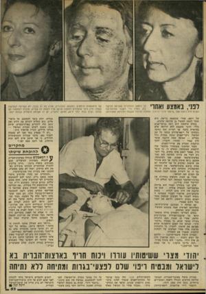 העולם הזה - גליון 2314 - 6 בינואר 1982 - עמוד 55 | למי, באמצע ואיחד כך נראתה ההולנדית שהגיעה לביקור בזק בארץ כדי לעבור מתיחת־עור הפנלם ללא ניתוח אצל ״מיסטר מיון״(מימין) .התחלת הטיפול נעשתה לעיניהם הסקרניות של