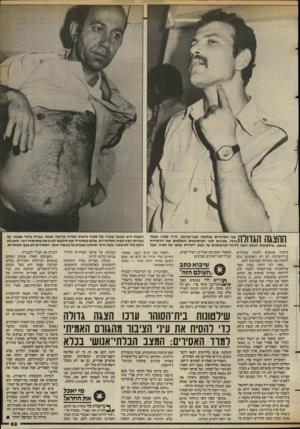 העולם הזה - גליון 2388 - 8 ביוני 1983 - עמוד 69 | שני הסוהרים שנלקחו בבני־ערובה, דויד ספיה ומשה 1גרטי, מציגים לפני העיתונאים והצלמים את הדקירות בגופם. שילשונות הכלא דאגו לדווח לעיתונאים על תשע דקירות בגופו של