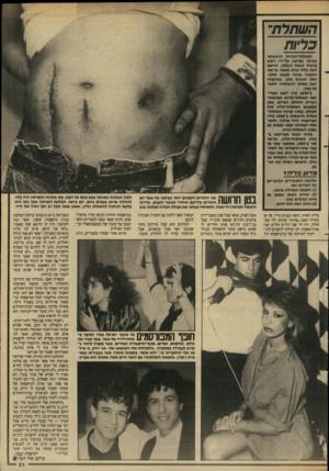 העולם הזה - גליון 2642 - 20 באפריל 1988 - עמוד 32 | כליות השתלת-הכליויג הראשונה נערכה גצרפת על-ידי רופא צרפתי כ שנת . 1903/הרופא לקח כליה אחתמ אס ה גריא ה והעביר אותה לאשה חולה. שתי הנשים ניתו. בעיקבות זאת נפשקו